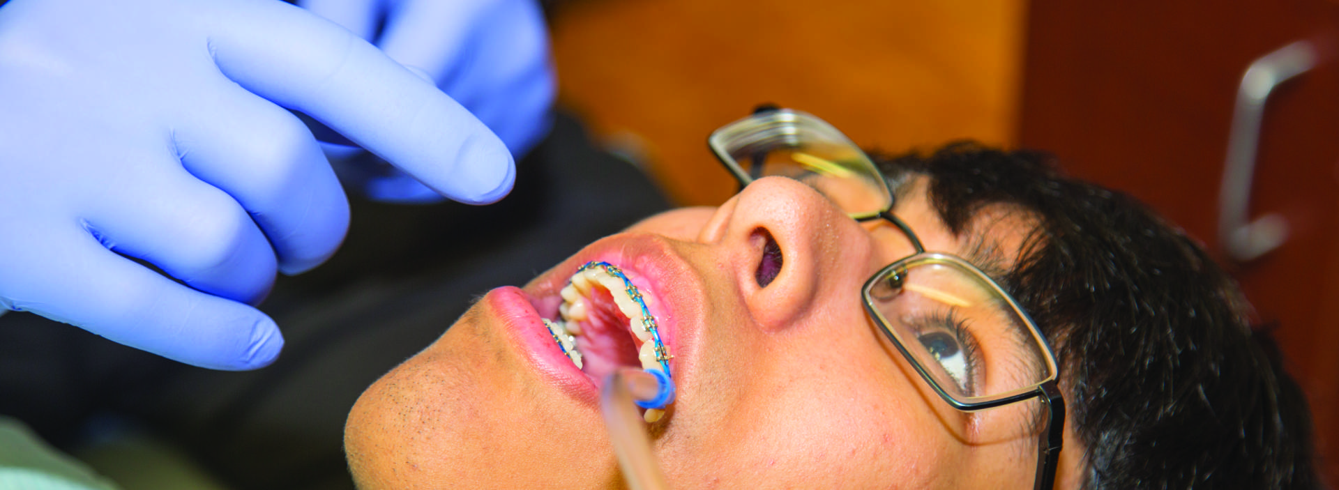 teenage boy having dental braces applied at Smile Structure Dentistry & Braces San Antonio, TX